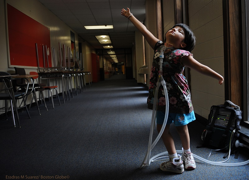 Newton, Ma 072308   Six-year old Jessica Leahey, who uses a respirator hooked up to her through a tracheotomy,  shows off her ballet moves while at summer camp at the Day Middle School in Newton on July 23, 2008. She suffers from  Moebius syndrome may  shows symptomsthat  may include: •Deformed tongue and jaw •Hand or foot deformities (one third or more of cases), such as club foot or missing fingers •Low muscle tone, meaning the child has trouble sitting or crawling •Swallowing or breathing problems (Essdras M Suarez/Boston Globe)/ Metro